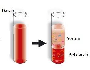 Perbedaan Serum dengan Darah