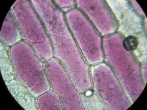 sel bawang merah