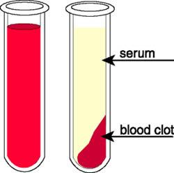 Perbedaan Serum dengan Plasma