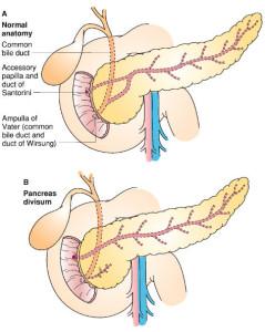 Pankreas duktus Wirsung