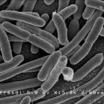 Cara Bakteri Mendapat Nutrisi Makanan