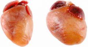 Gejala Pembesaran Jantung