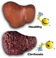 Gejala dan Penyebab Sirosis Hati
