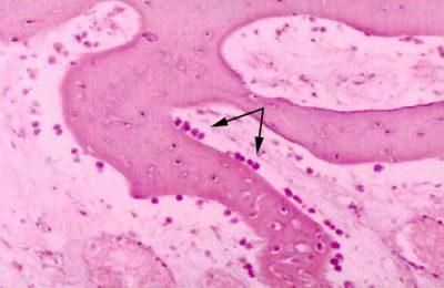 Osteoblas