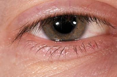 Jenis Infeksi virus pada Mata