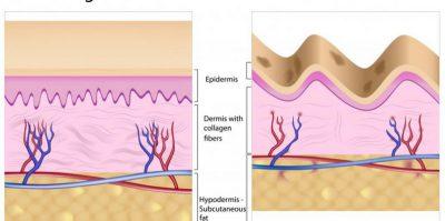 kolagen pada kulit