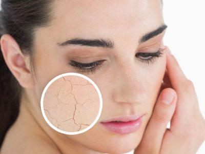 dehidrasi kulit wajah